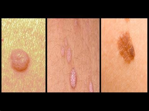 Skin tag vs Warts vs Mole removal on face, neck, hands